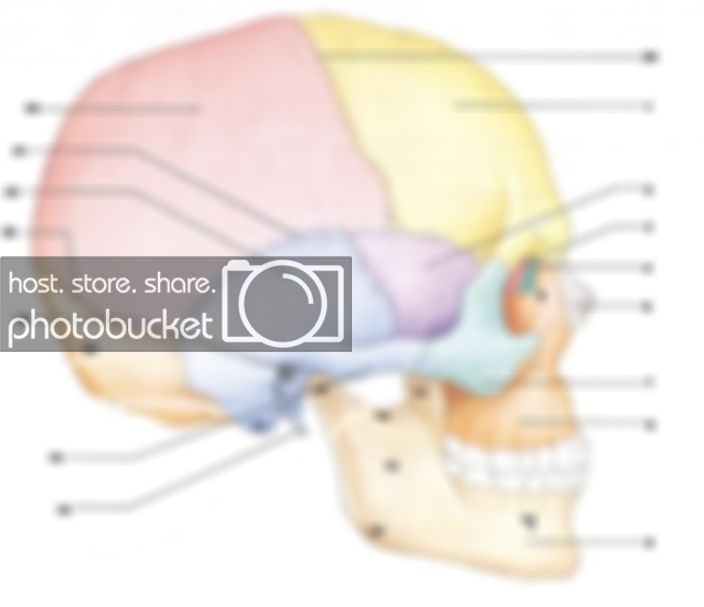 Anatomy Of Right Lateral Aspect Of Skull Quiz